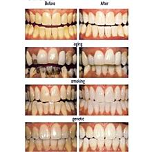 28PCS White Effects Dental Whitestrips Advanced Teeth Whitening Strips Stripes