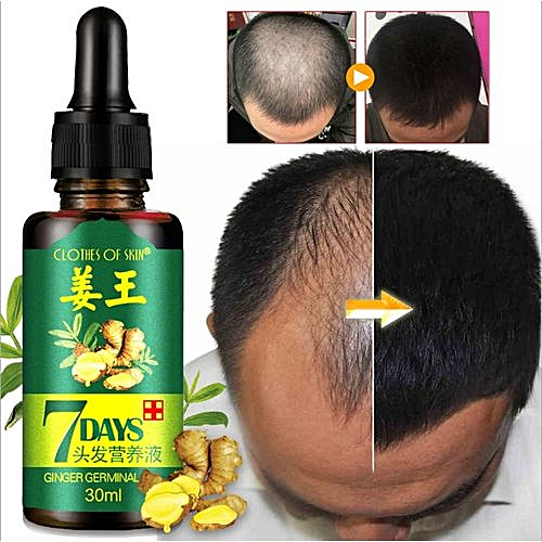 7 Days Hair Growth Essence Hair Loss Essential Oil - 30ml