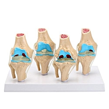 One Set Knee Joint 4-stage Osteoarthritis Anatomical Model Set Of 4