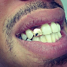 24K Gold Comfort Custom Single Tooth Cap Grillz Hip Hop Teeth Grill Slugs
