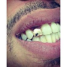 Dental Care - Buy Dental Care Products Online   Jumia Kenya
