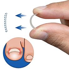Ingrown Toenail Straightening Clip Curved BS Brace Toenails Thick Paronychia Correction Tool