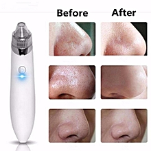 1PCS Cleaner Machine + 4PCS Suction head Electric Black head Cleaner Acne Remover Facial Pore Blemish Cleanser Tool Kit White